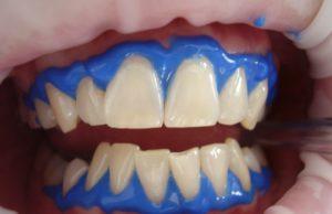 Effektiv tannbleking